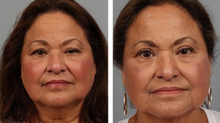 Atlanta patient before & after eyelid surgery