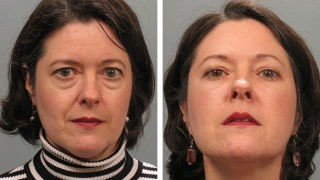 Atlanta patient before & after blepharoplasty