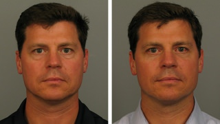 Male Atlanta blepharoplasty patient