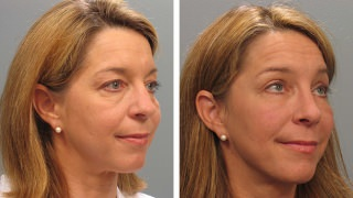 Patient before & after eyelid surgery in Atlanta