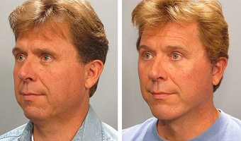 facelift-with-chin-implant-01