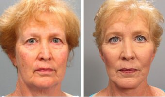 Facelift Atlanta before & after results