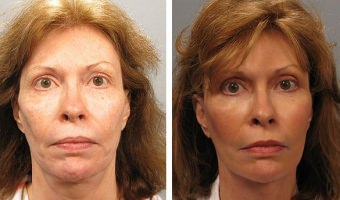 Atlanta facelift patient