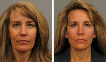 Woman before & after facelift in Atlanta