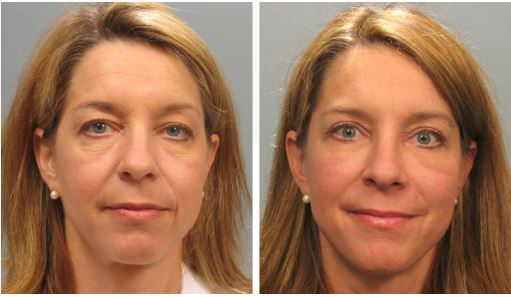 Atlanta face lift patient
