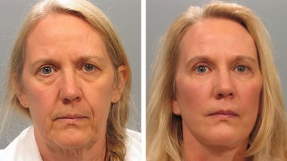Female facelift patient in Atlanta