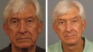 Male facelift patient in Atlanta