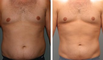 Male Liposuction Atlanta