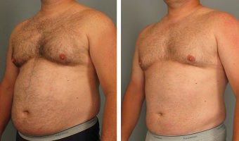 Male Lipo patient in Atlanta