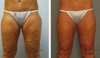 Atlanta Liposuction – Thighs