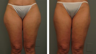 Liposuction on Thighs in Atlanta