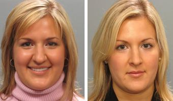 Atlanta rhinoplasty patient