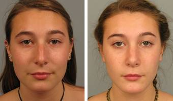 Patient before and after rhinoplasty in Atlanta