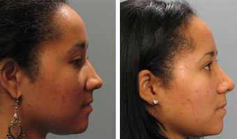 Altlanta patient before and after rhinoplasty