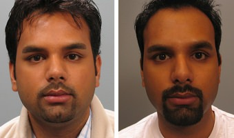 Male Rhinoplasty Patient Before & After