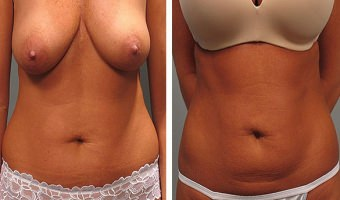 Tummy Tuck Atlanta