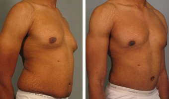 tummy-tuck-and-liposuction-03