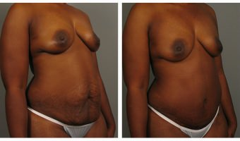 Atlanta Tummy Tuck Patient
