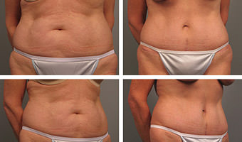Tummy Tuck Atlanta Results