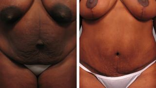 tummy-tuck-and-liposuction-05