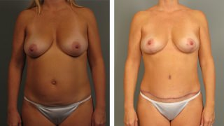 tummy-tuck-and-liposuction-06