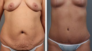 tummy-tuck-and-liposuction-10