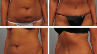 Patient before & after Tummy Tuck in Atlanta