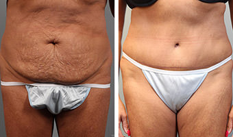 Patient before and after Atlanta Tummy Tuck