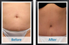 Liposuction in Atlanta