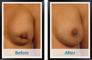 Breast revision surgery in Atlanta