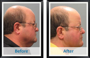 Facelift Atlanta Results