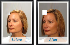 Juvederm in Atlanta