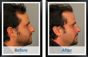 Male rhinoplasty in Atlanta