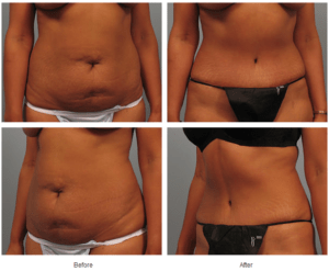 Atlanta Tummy Tuck Before & After